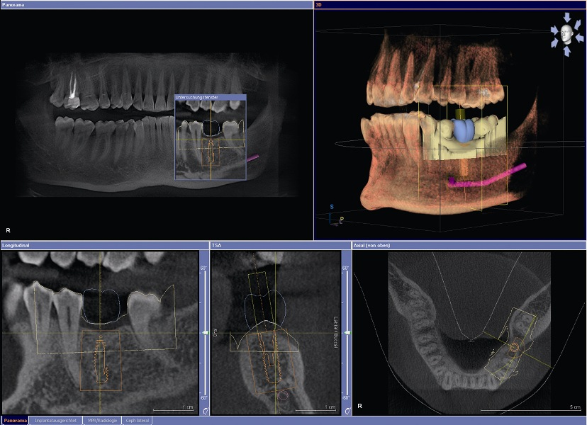 Dental Scanning Bangor Ct Scanner At Helens Bay Dental