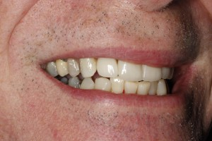 implants after