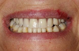 Replace Missing Teeth