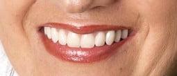 Advanced Dental Implants