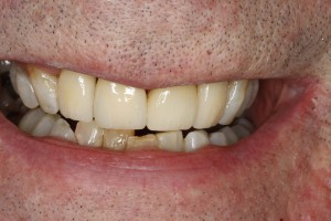 Ceramic Bridges