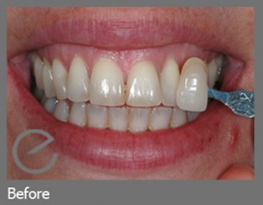 Teeth Whitening Bangor