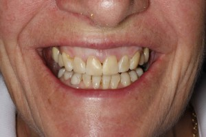 Natural Coloured Fillings
