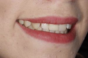 Natural coloured fillings 2 after
