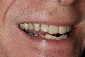 Dental Implants in Bangor