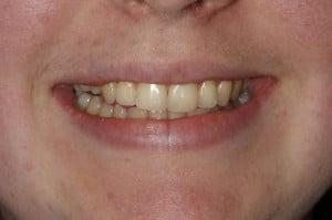 Tooth Trauma